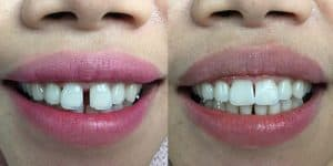 FRONT TEETH SPACE CLOSURE.FILLING